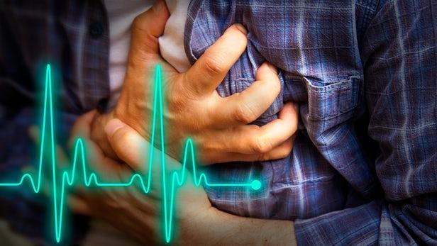 Mortality Algorithm Can Predict Heart Attack, Death With 90% Accuracy